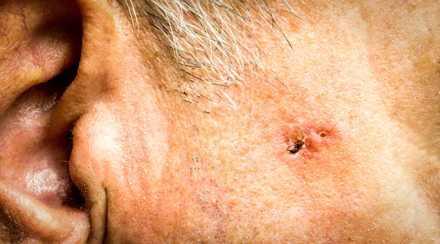 Skin Cancer - Clarity Dermatology